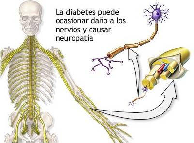 BioTerapias: Neuropatia Diabetica