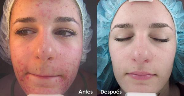 tecnologia ems para la piel